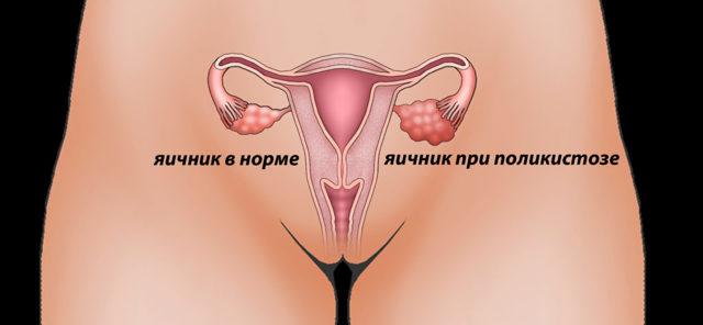 Почему девушка не может забеременеть: причины, препятствующие зачатию