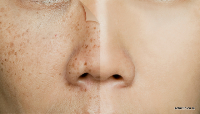 Веснушки на лице и теле