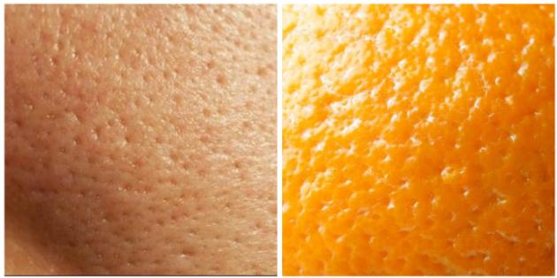 Что делать, если кожа лица пористая: практические советы