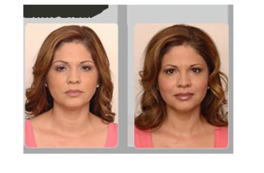 Пластический массаж лица: сохранение красоты без уколов и операций