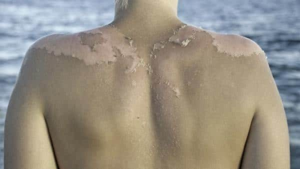 Белые, темные пигментные пятна от солнца на коже после загара