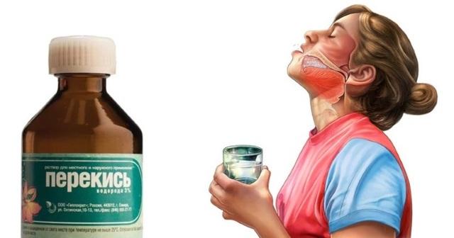 Неприятный запах изо рта: причины, как избавиться в домашних условиях