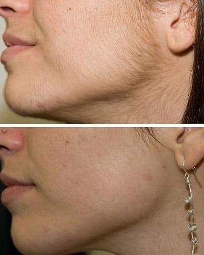 Как избавиться от волос на лице навсегда: салонные и домашние методы