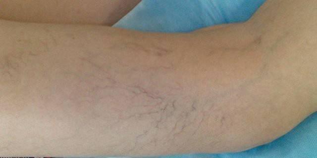 Секреты народной медицины: как избавиться от варикоза на ногах