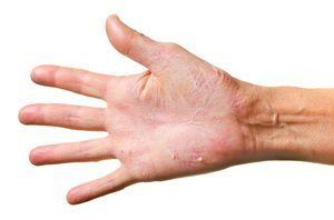 Очень сухая кожа рук: как вернуть великолепие ручкам
