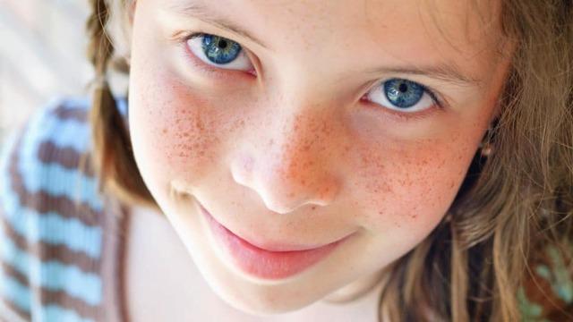 Как избавиться от веснушек на лице: в домашних условиях готовим маски и лосьоны
