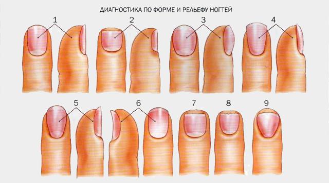 Слоятся и ломаются ногти на руках: причины и лечение