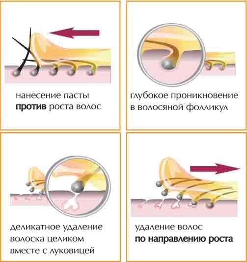Безболезненный шугаринг: депиляция в домашних условиях сахаром