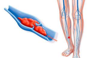 Антицеллюлитный массаж при варикозе ног: техника, противопоказания, советы